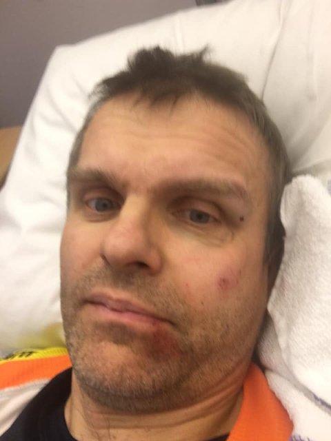 På Gravdal: Onsdagens sykketur gikk ikke helt som planlagt for Villy Angelsen. Torsdag ble han operert på sykehuset på Gravdal.