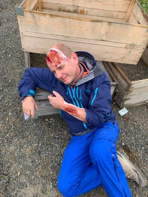 MED: Ordfører Reidar Kaabbel i Våler er med på øvelsen, sminket til å spille en skadet person.