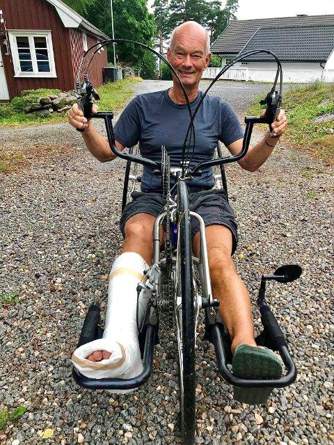GIPS INGEN HINDRING: Etter et snubleuhell i sommer måtte Morten Kerr få gips og støtteskinne. Den siste tiden har han derfor måttet ta i bruk en alternativ sykkel.