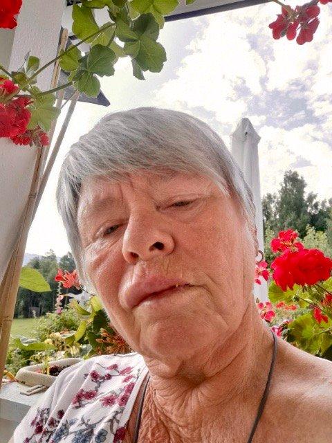 VERANDALEPPE: Overleppa til Laila Støen ble skikkelig hoven etter at hun skulle ta den siste, lille slurken av brusboksen – og fikk en veps i munnen.
