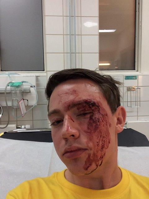 BLODIG: Slik så Edvin Eriksen ut etter å ha vært utsatt for hatkriminalitet i Oslo i forrige uke.