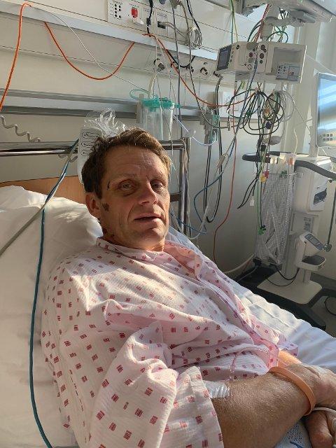 – JEG ER HELDIG SOM LEVER: Arne Christian Folmer (53) våknet opp på intensivavdelingen på Ullevål sykehus, etter en bilulykke ved Haaby.