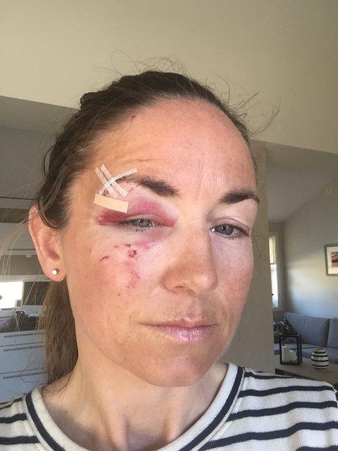 Gry Jørgensen ble angrepet av et hundespann på åtte husky-lignende hunder mandag formiddag. (Foto: Privat)