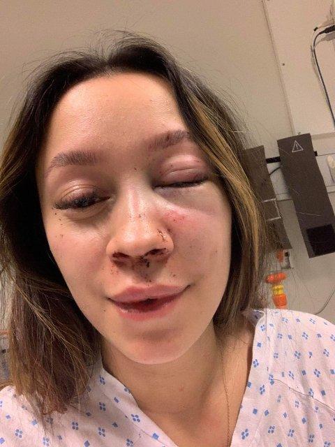 BLIND VOLD: Slik så Jeanette Teigen Bjørn ut etter å ha vært offer for blind vold natt til 27. desember.