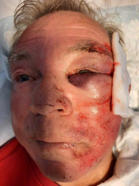 Brudd i øyehulen: En svært forslått Tom Gunnar Karlsen (61).