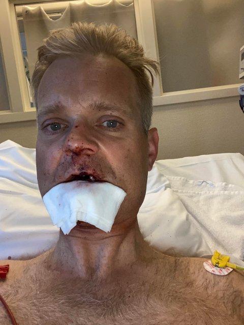 MÅTTE RETTES OPP: Nesen til Ketil Wendelbo Aanensen (43) fikk seg en skikkelig trøkk, og måtte rettes opp med hjelp av innvendige silikonplater.