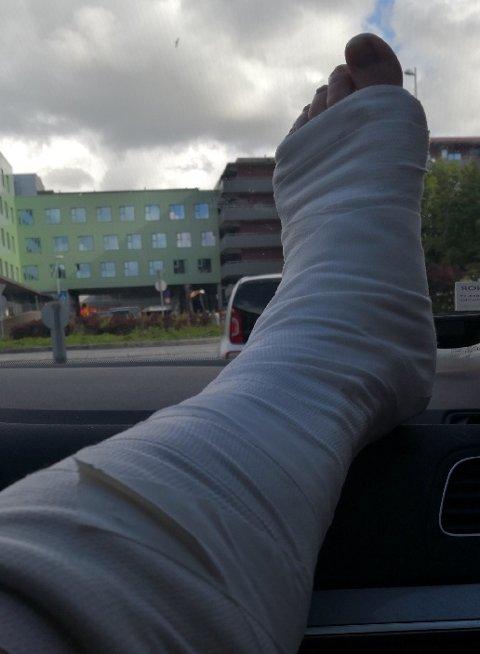 Veronica Halvorsen fikk konstatert to brudd samt skader på stabiliseringsbåndene i foten.