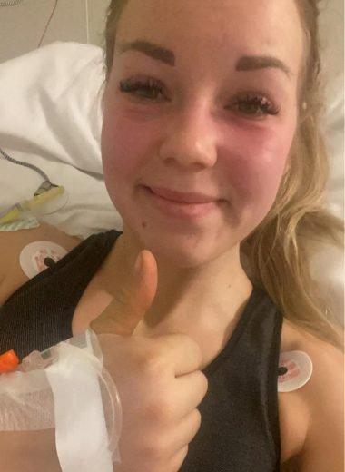 FLAKS:: - Det var bare flaks at jeg fikk flyttet meg slik at jeg fikk den over foten og ikke over livet. sier Andrea Emilie Frednes.