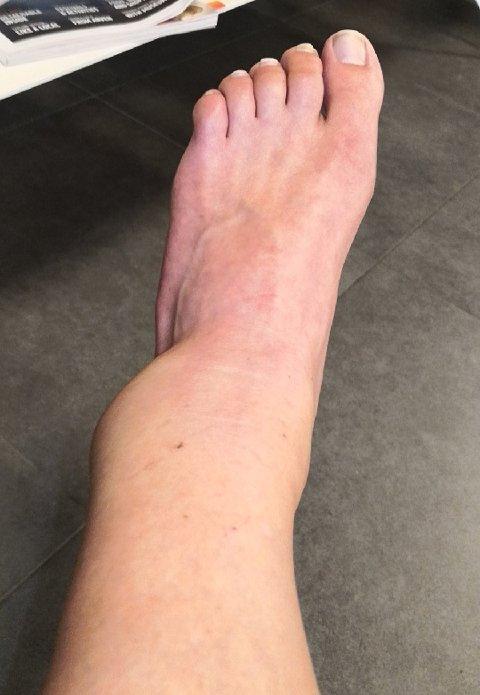 Slik så foten til Veronica Halvorsen ut etter en kraftig overtråkk.