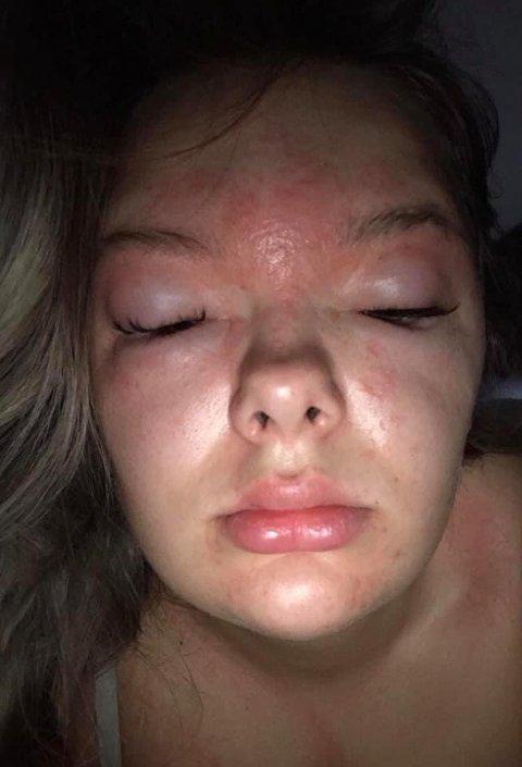 VELDIG HOVEN: Slik så ansiktet til 19-åringen ut etter at hun vokset øyenbrynene hjemme hos en dame på Skjetten.