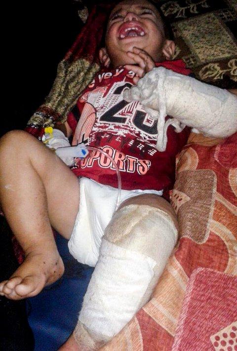 De minste barna har fått store skader av minen som eksploderte da moren tråkket på den.