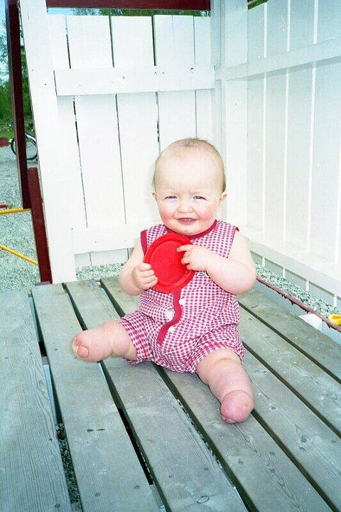 For 24 år siden ble Anita født med dysmeli.