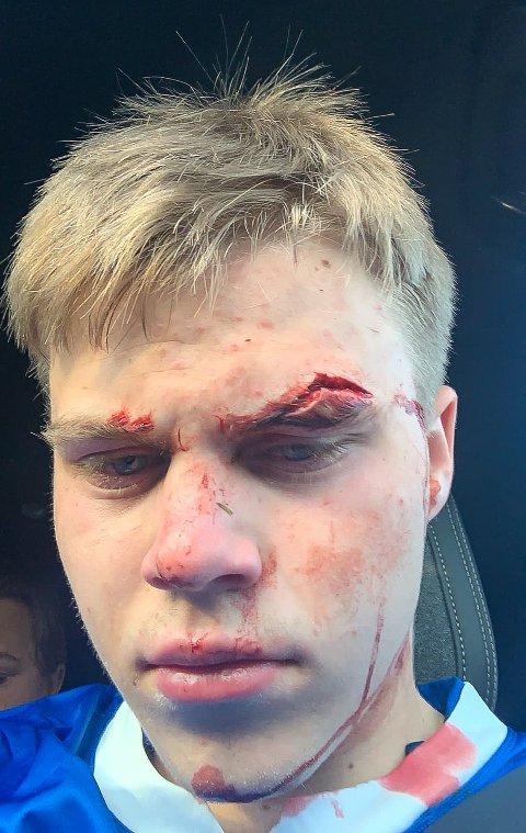 SOLID KUTT: Petter Jørgensen måtte bli sydd etter smellen på fotballbanen i Åmot torsdag kveld.