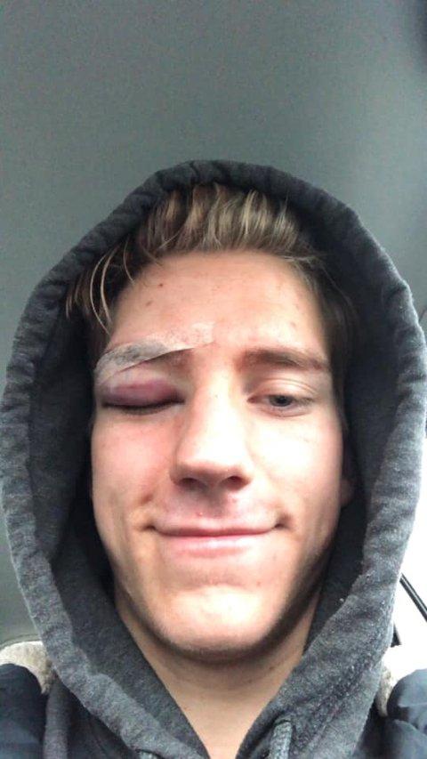 Forsvarsspilleren var ved godt mot på vei hjem fra sykehuset fredag.