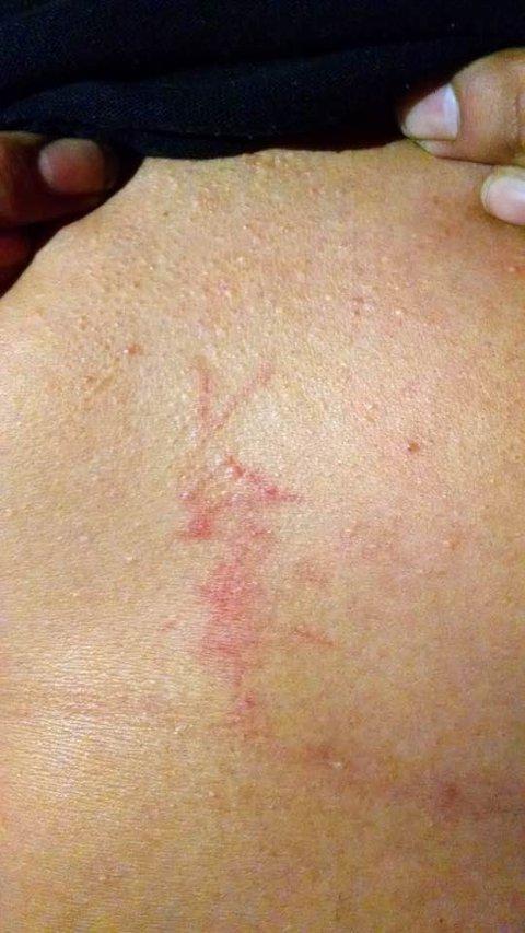 GUMMIKULESKADER: En demonstrant skal ha blitt skadet av gummikuler under demonstrasjonene.
