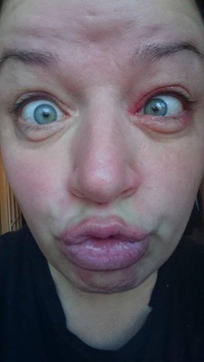 """Når fjeset er klinisk blottet for selfie-kompetanse, men man som blogger føler seg forpliktet til å levere den daglige dosen """"duckface"""" likevel!"""