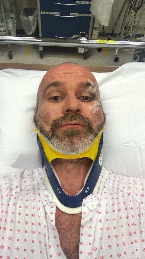 UHELDIG: Arvid Prytz Nordstrand endte på sykehuset etter at han deiset i asfalten undervegs i hans «Tour te Oslo» i helga. Han håper det ikke tar lang tid før han er tilbake på to hjul.
