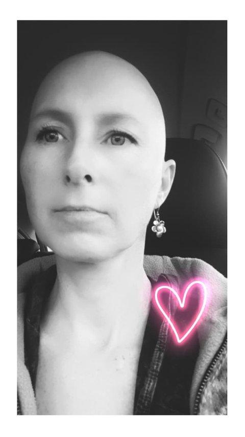 Fikk diagnosen i januar: Hilde Hansen Smeland har brystkreft, og nå frykter hun for den nødvendige kreftbehandlingen som er planlagt for henne fremover.