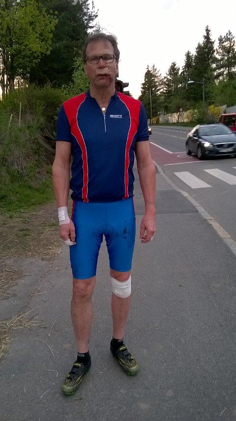 PÅKJØRT: Rolf Pettersen var ganske forslått etter at han ble påkjørt av en bil tirsdag 10. mai. Foto: Privat