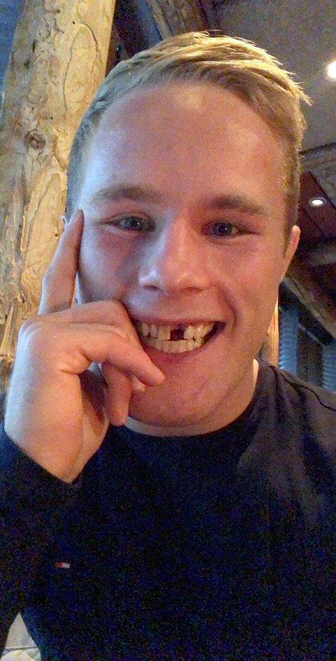 Morten Thoresen har sydd utallige sting i ansiktet. - Kutt er ut, nå er det å miste tenner som gjelder, sier han med en solid dose galgenhumor. Foto: Privat