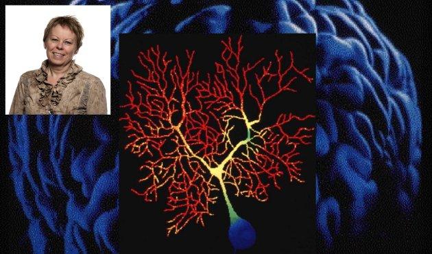 HJERNESLAG: Flere studier som forskere ved Høgskolen i Innlandet er en del av, peker på at personer med hjerneslag med usynlige symptomer får mangelfull oppfølging, skriver førsteamanuensis Randi Martinsen.