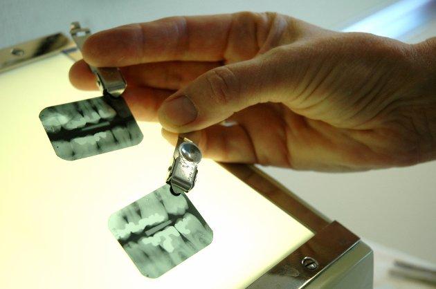 TANNKLINIKKER: Fylkestannlegen tar en lettvint løsning, skriver Morten Kielland om forslaget om omorganisering av tannhelsetjenesten.