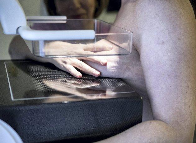 Mange får forsinket invitasjon til mammografitime som følge av pandemien. –Det gjør det også ekstra viktig at du takker ja og prioriterer timen når invitasjonen først kommer, skriver innleggsforfatterne. Illustrasjonsfoto: Christine Olsson/TT/NTB
