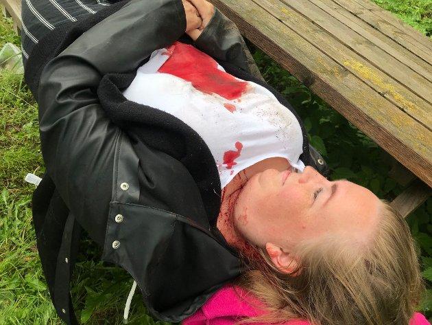 Blodet fra hodet fant veien nedover brystet og samlet seg i en flekk på magen.