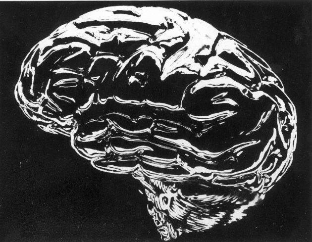 HjerneScan-Foto