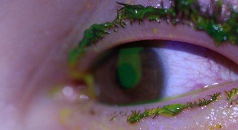 Øyeskade fra nyttårsaften 2011/2011: Gutten fikk raketten i ansiktet. Heldigvis hadde han vernebriller på. Det grønne og gule på bildet er et stoff øyelegene tar på for å kunne se skadene på øynene. Han har skader på hornhinnene. Du kan også se at øyevippene er svidd av.