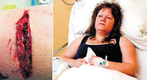 Ann-Kristin Bjerknes ble skambitt av en schæfer som gikk uten bånd på Sandsli. Det største såret etter hundeangrepet car 10 cm. I tillegg fikk hun to mindre sår foran på leggen. (Arkivfoto)