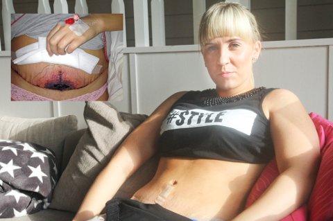 Etter flere korrigerende operasjoner ved Nordlandssykehuset, er magen til Lindis nesten perfekt. Innfelt er operasjonssåret slik det så ut bare dager etter det opprinnelige inngrepet.