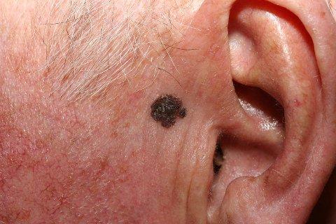 Føflekkreft i en føflekk ved øret.