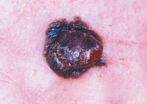 Denne føflekken har en klump i seg og er et eksempel på føflekkreft.