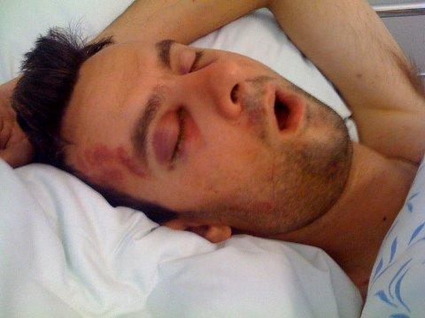 Kenneth Veland lå i koma i flere dager etter overfallet. Ingen visste hva slags skader han hadde fått.