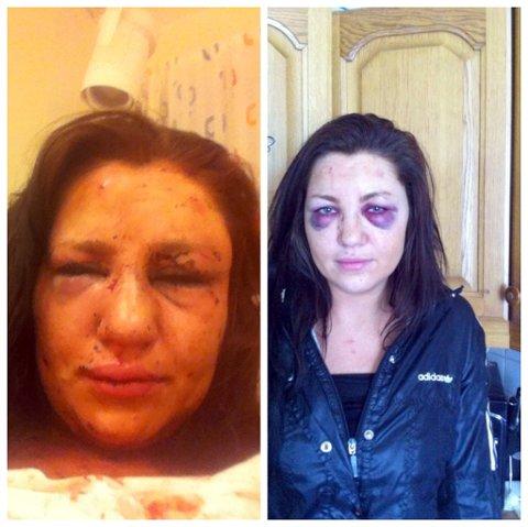PÅ SYKEHUSET: Bildet til venstre er tatt av Sandra på sykehuset kort tid etter overfallet. Hevelsene har gått noe ned, men skadene er fortsatt godt synlige.FOTO: PRIVAT