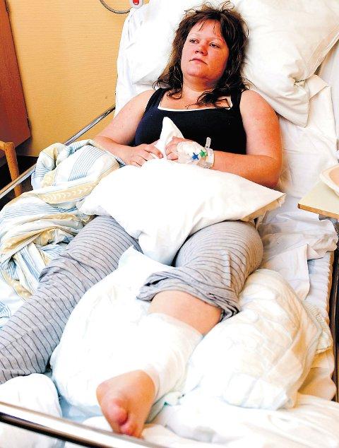30-åringen måtte gjennom tre operasjoner etter hundebittene. (Arkivfoto)