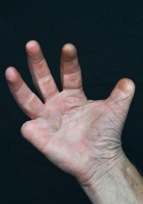 Yrkesskade: Yrket har satt sitt preg. Ronald mangler halve tommelen og lillefingeren på høyre hånd etter et uhell for mange år tilbake.