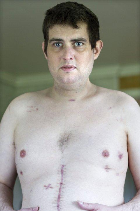 MERKET FOR LIVET: Dag Espelund fikk ett knivstikk i magen og to i ryggen.