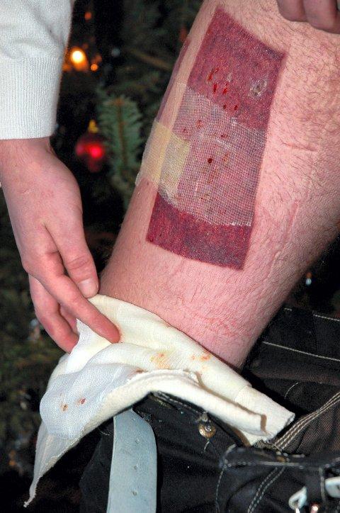 21 år gamle Kim Erik Solberg fra Gjøvik fikk store brannskader da en kamerat helte en Plumbo-coctail i buksa hans.