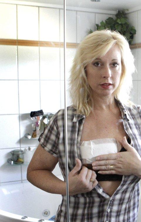 KJEMPER: Lise Askvik kjemper for at 5.000 kvinner som står i kø skal få rekonstruert kreftopererte bryst.Foto: Kay Stenshjemmet