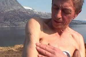 Erling Sandvik viser der ett av skudden traff. Fremdeles sitter det hagl i kroppen.