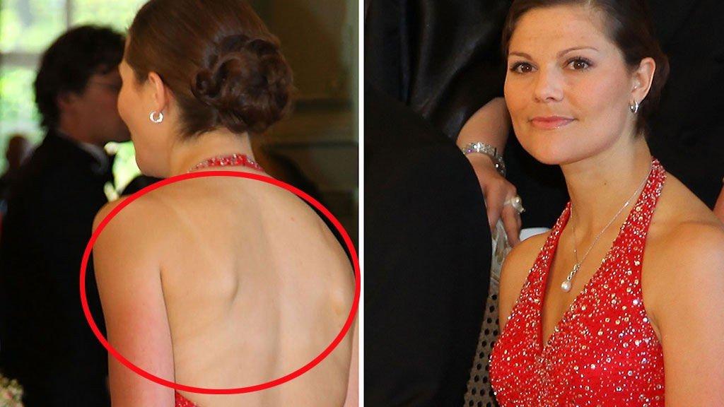SOLSKILLET: Etter Brasilturen i april har Victoria fortsatt skillet på ryggen etter bikinien...