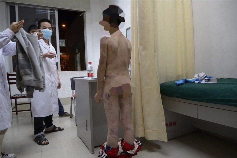 En ti år gammel kinesisk gutt, som går under pseudonymet Binbin, gjennomgår en legeundersøkelse etter at læreren oppdaget omfattende barnemishandling. Ifølge gutten selv blir han mishandlet av stemoren sin. Bildene av gutten skal ha blitt delt titusener av ganger på sosiale medier.