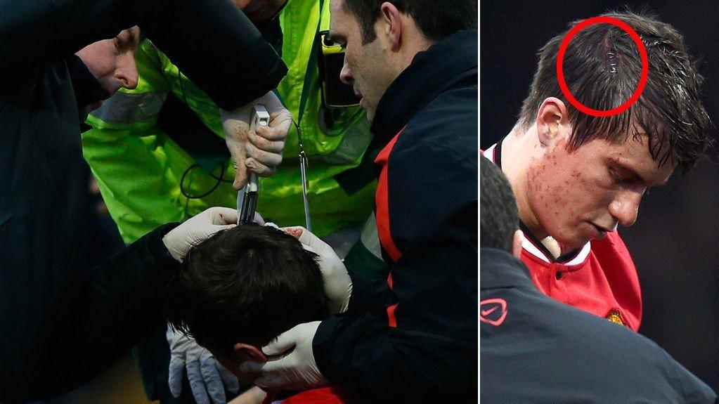 STIFTET SAMMEN: Paddy McNair fikk behandling for en hodeskade.