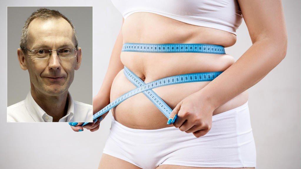 FEDME: Professor Jøran Hjelmesæth beskriver fedmeutviklingen som alarmerende, og mener samfunnet må tørre å gjennomføre strukturelle endringer for å snu trenden.