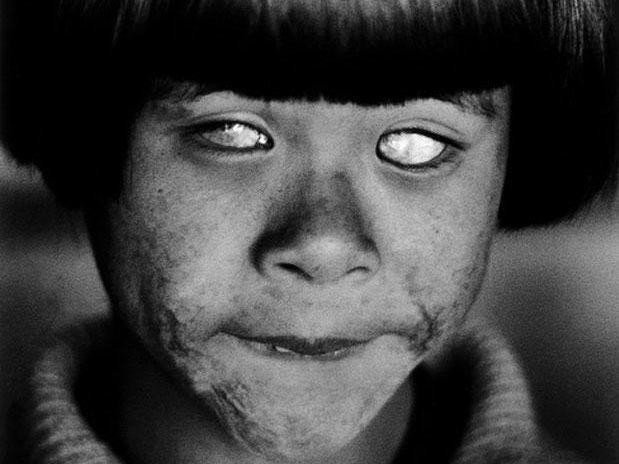 Dette bildet ble tatt av den avdøde svenske fotografen Christer Strömholm i Hiroshima i 1963. Nettavisen får opplyst av sønnen, Joakim Strömholm, at jenta ikke var direkte rammet selv av angrepet, men har trolig fått skader som følge av at foreldrene var utsatt for atomangrepet 6. august, 1945 - såkalte hibakushaer.