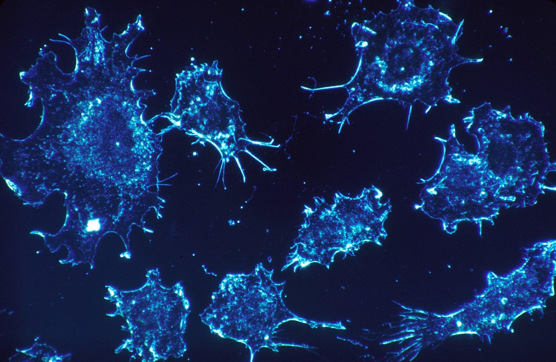 KREFTCELLER: Lovende labresultat gir håp for kreftpasienter.