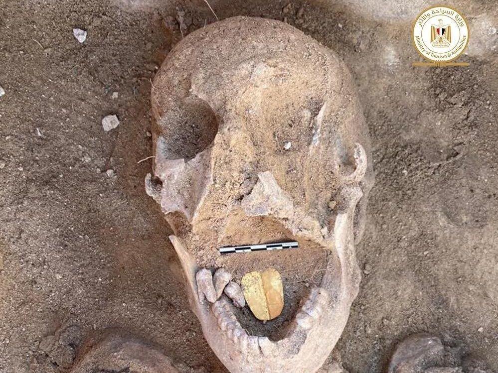 mumie med gulltenner