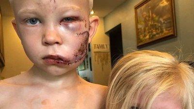 Seks år gamle Bridger fikk alvorlige skader i ansiktet etter å ha beskyttet lillesøsteren mot en angripende hund.